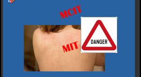 Gel cicatrisant Lidl  Le plein d'allergènes